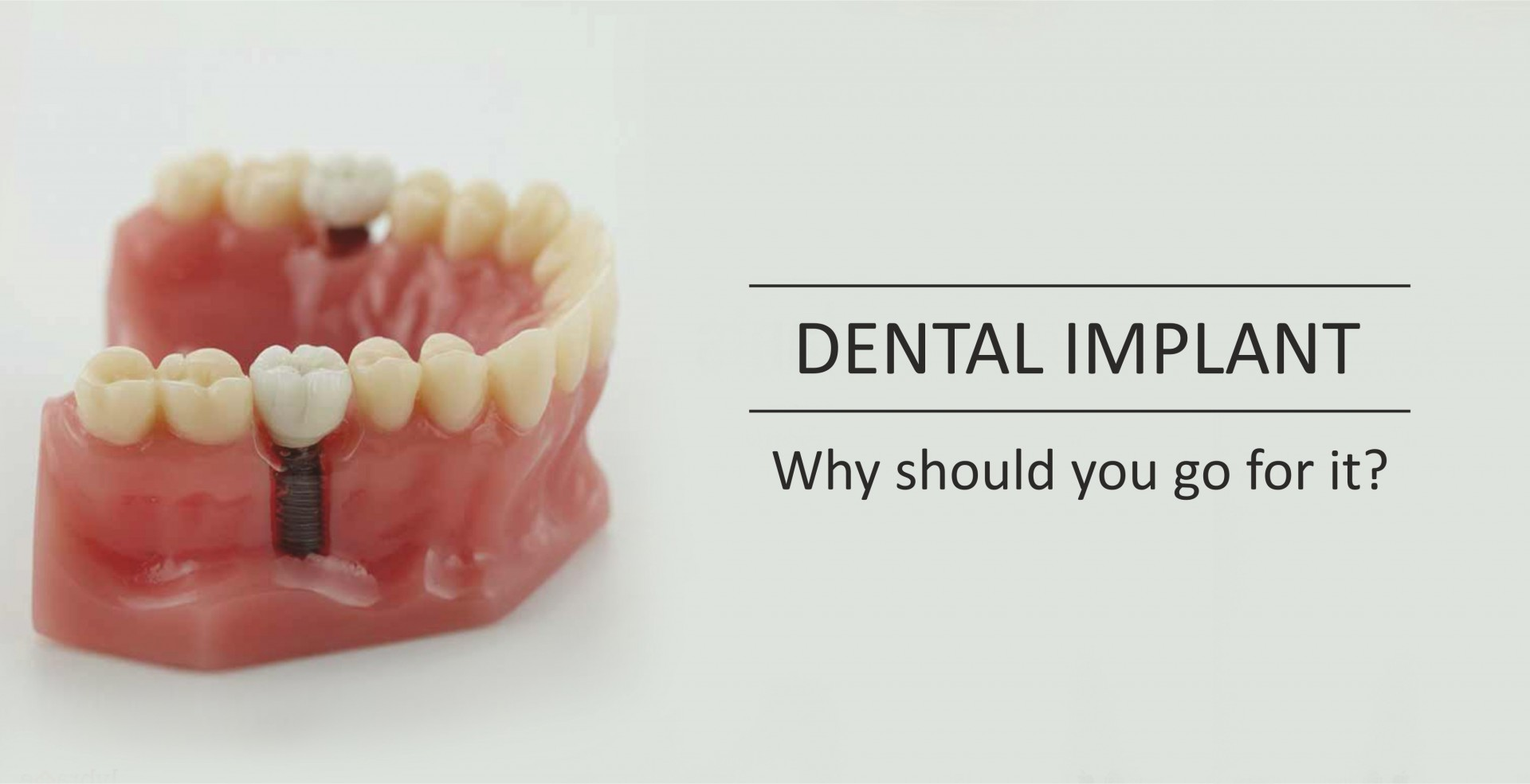 dental blog