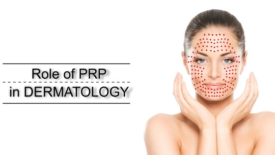 Role of PRP in dermatology