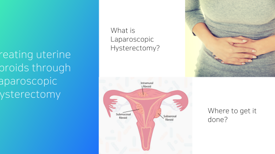 Treating uterine fibroids the best way through laparoscopic hysterectomy