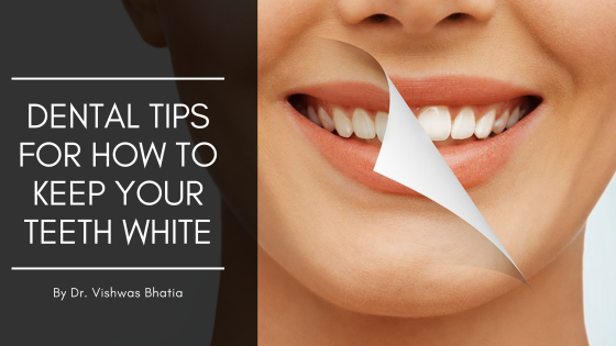 Dental tips for white teeth
