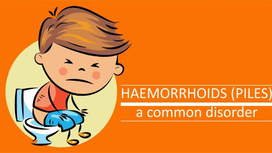 Haemorrhoids (piles)- a common disorder