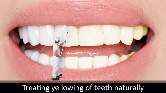 Treating yellowing of teeth naturally