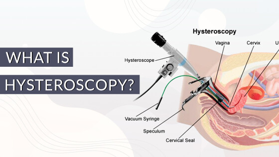 What is Hysteroscopy (1)